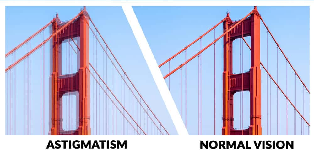 Example of vision with Astigmatism. It is a type of refractive error in which the eye does not focus light evenly on the retina. This results in distorted or blurred vision at all distances