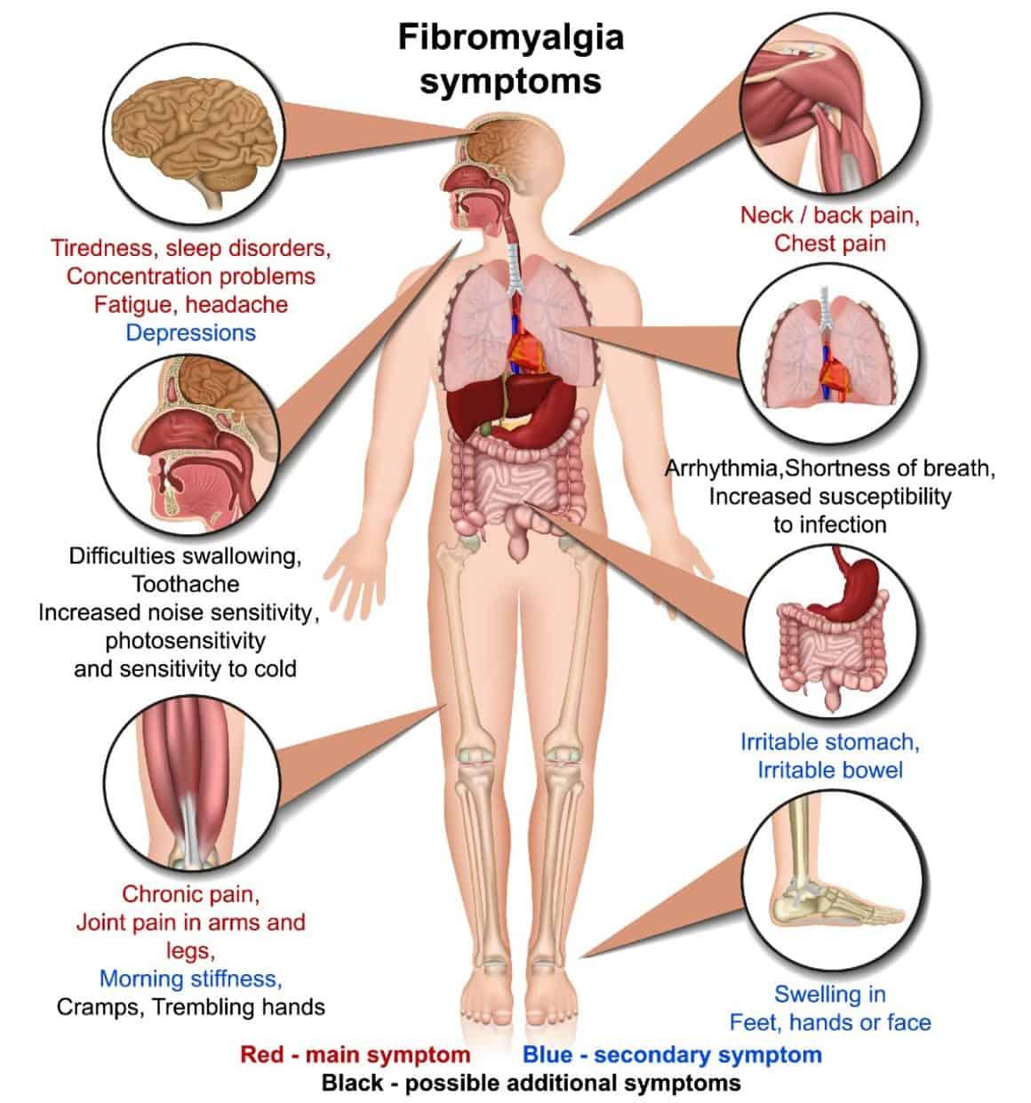 fibromyalgia symptoms medical vector illustration isolated on white background infographic
