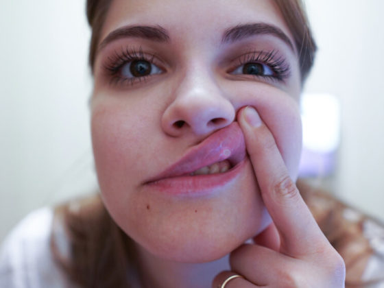Young woman with a sore lip. Aphthous stomatitis is a common condition characterized by the repeated formation of benign and non-contagious mouth ulcers. Canker sores