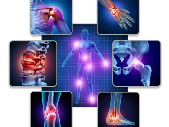 Human body joint pain concept as skeleton and muscle anatomy of the body with a group of sore joints as a painful injury and medical symptoms with 3D illustration elements. Is fibromyalgia real concept art.