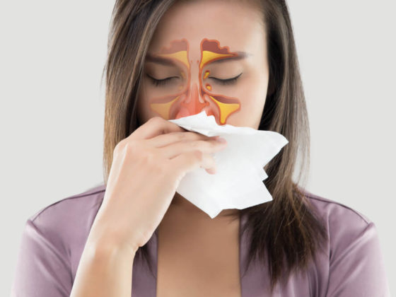 A woman with a sinus infection (sinusitis) blows her nose.