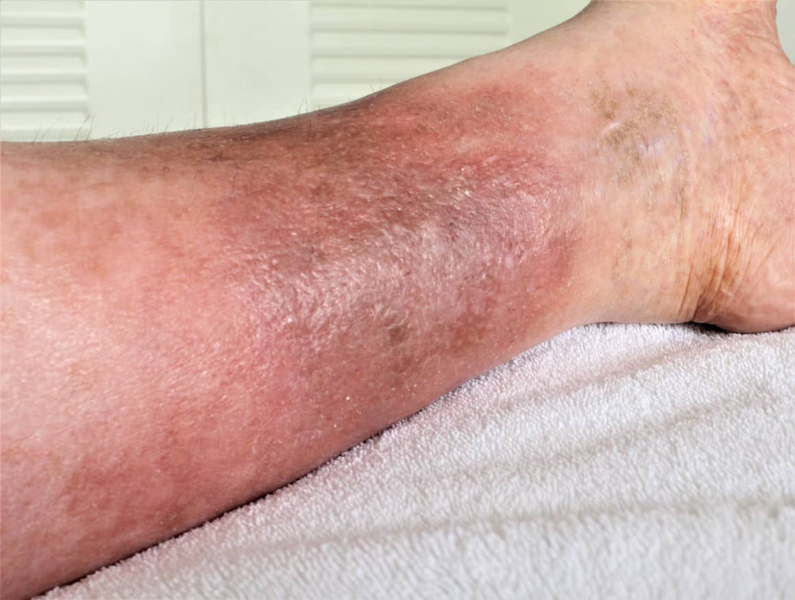 A woman's leg is shown, she is suffering from Chronic Venous Insufficiency with mild cellulitis in her legs. In bed as she rest to relieve heaviness, swelling, pain & redness in the leg.