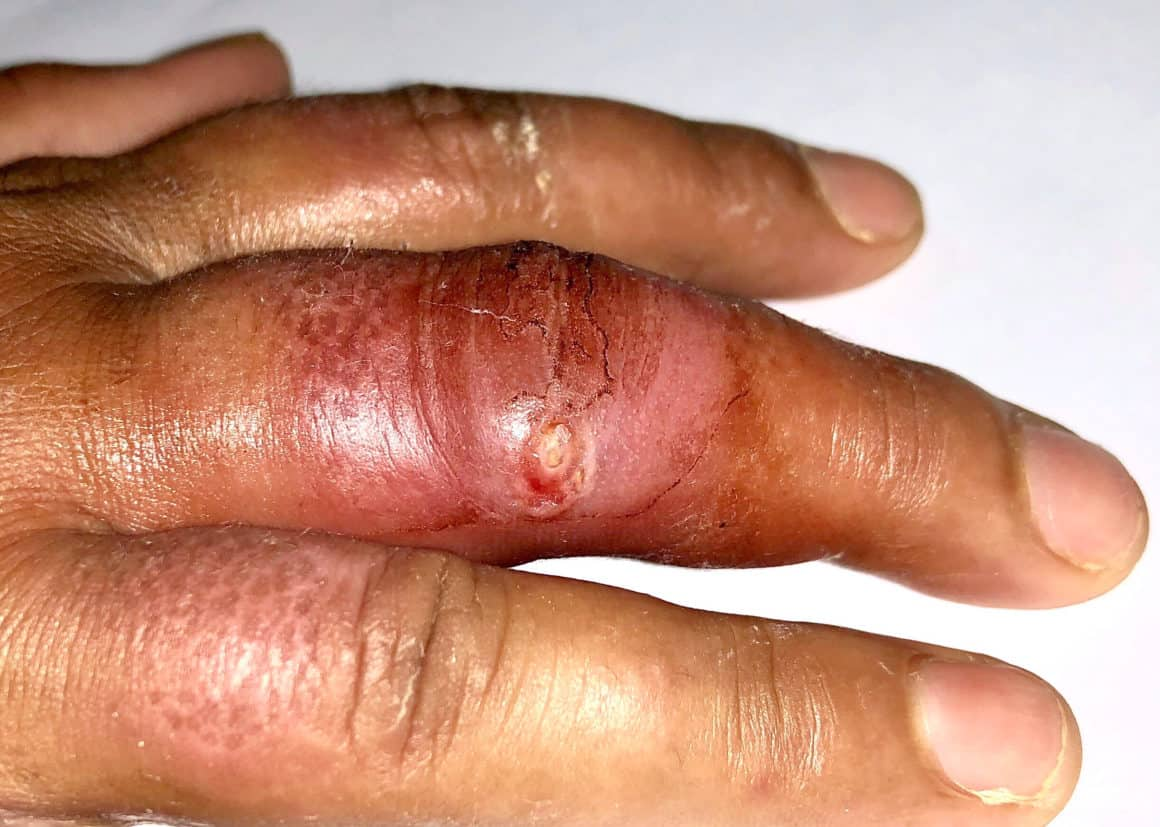 Painful furuncle or abscess with surrounding cellulitis or Staphylococcal / Streptococcal skin infection in middle finger right hand of Asian Burmese young female patient in clinic of Myanmar