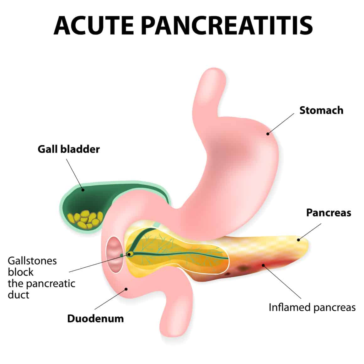 Acute pancreatitis is an inflammation of the pancreas. Gallstones block the flow of pancreatic juices into the duodenum. Digestive enzymes become active in pancreas, where they destroy healthy tissue.