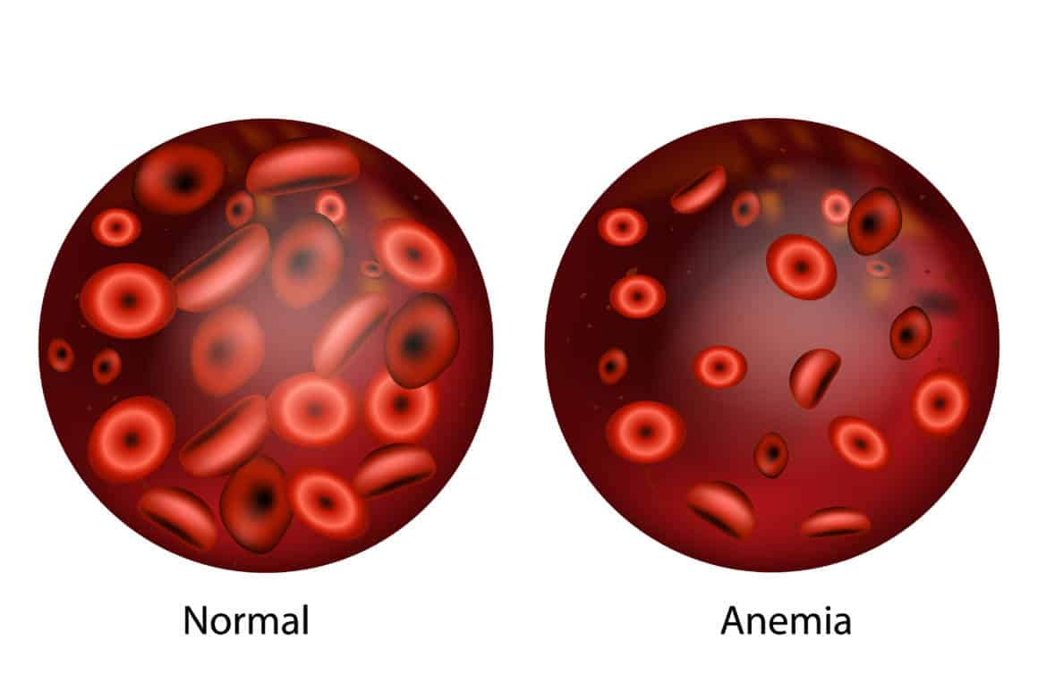 Iron deficiency anemia.The difference of Anemia amount of red blood cell and normal.