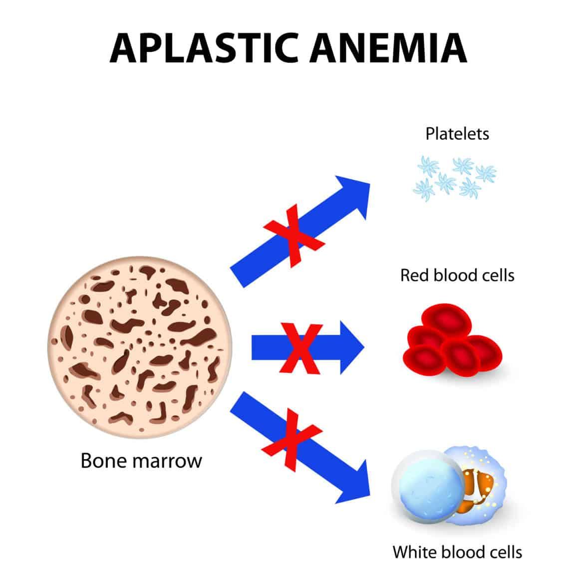 aplastic anemia. disease bone marrow