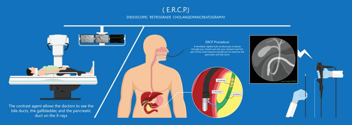 Endoscopic Retrograde Cholangiopancreatography ERCP diagnose treat device bile duct X-rays pancreatic removal material study surgery Tumor cancer infection diagnostic abdominal MRI inject