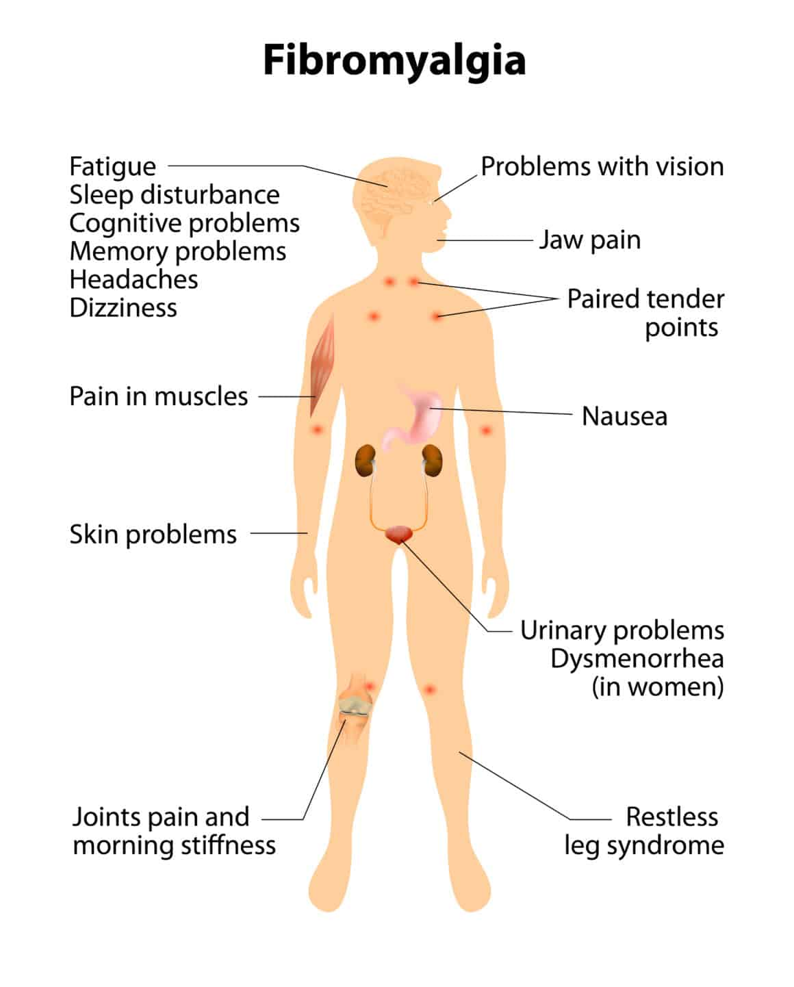 signs and symptoms of fibromyalgia. Human silhouette with internal organs