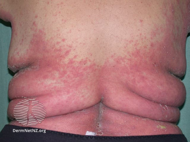 Generalized pustular psoriasis; red area covering the lower back of a man