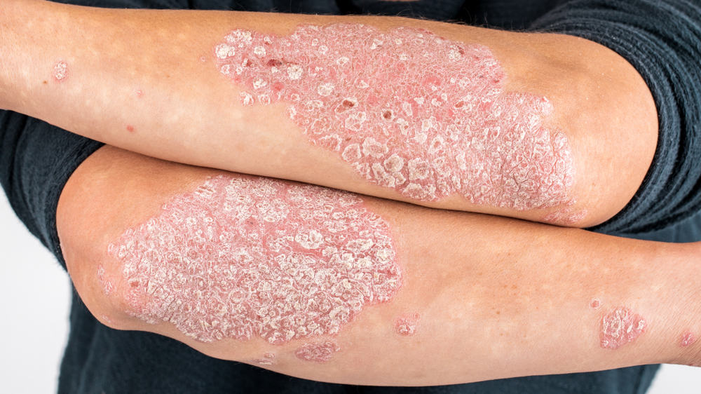 Man with scaly red and white psoriatic plaques on his elbows.