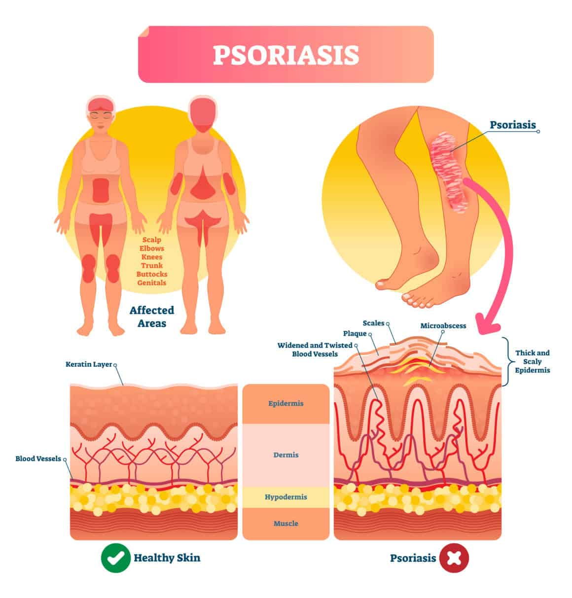 Psoriasis vector illustration. Autoimmune skin disease and illness. Labeled structure with scales, plaque, widened and twisted blood vessels. Shown affected areas on human body.