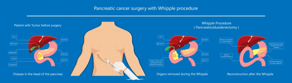 Whipple procedure pancreaticoduodenectomy Pancreatic cancer treatment total pancreatectomy Small bowel surgical