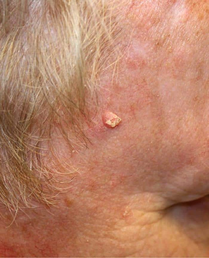 10 Types Of Skin Cancer And How Deadly They Are Page 4 Of 11 Drug Genius