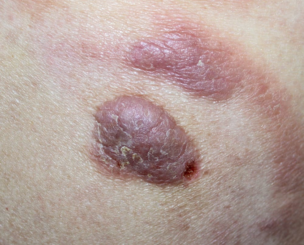 10 Types Of Skin Cancer And How Deadly They Are Page 7 Of 11 Drug Genius